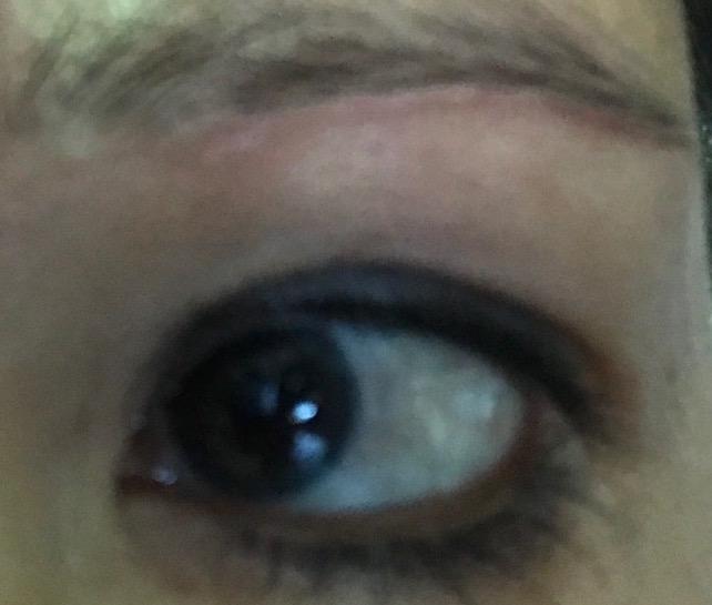 Four weeks after stitch line under left eye
